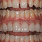 bonding and veneers