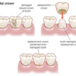 DENTAL CROWNS (Caps)